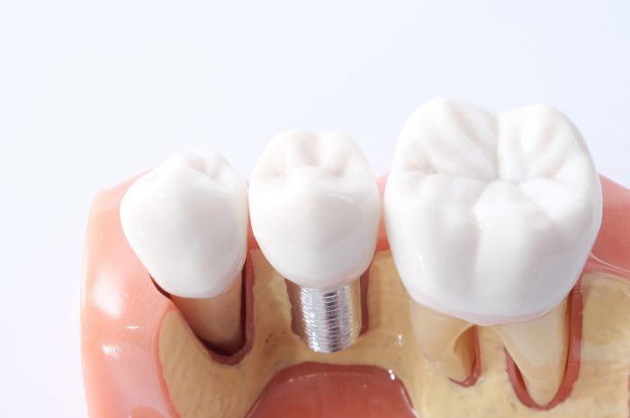 dental bone graft complications
