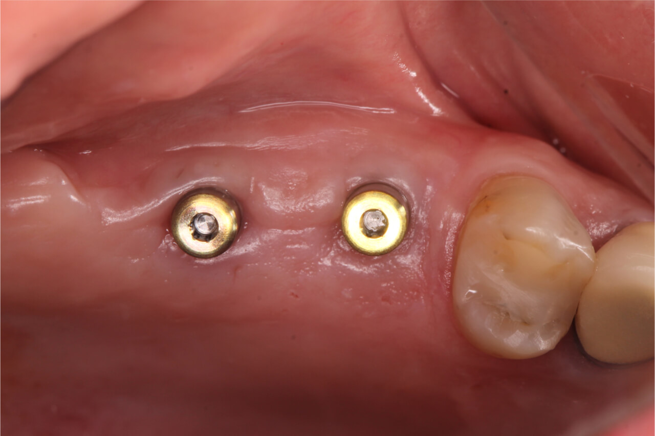 dental implant healing cap