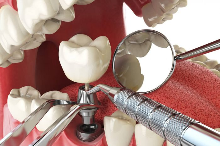 Dental Implant Surgery Precautions And Reminders