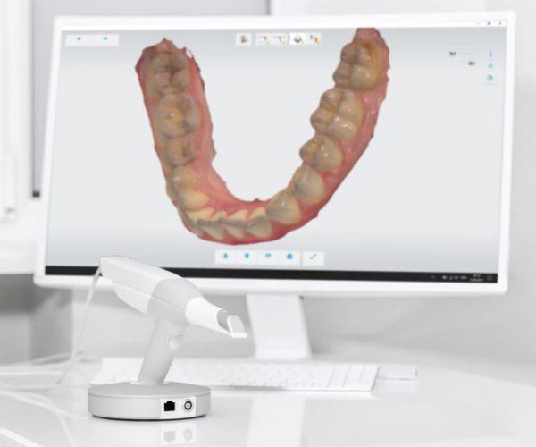 scan digital